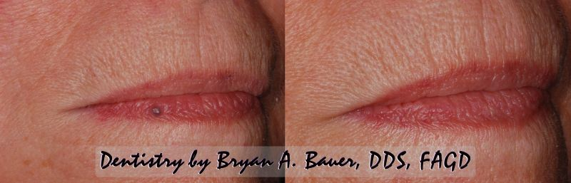 small blue bump on lip