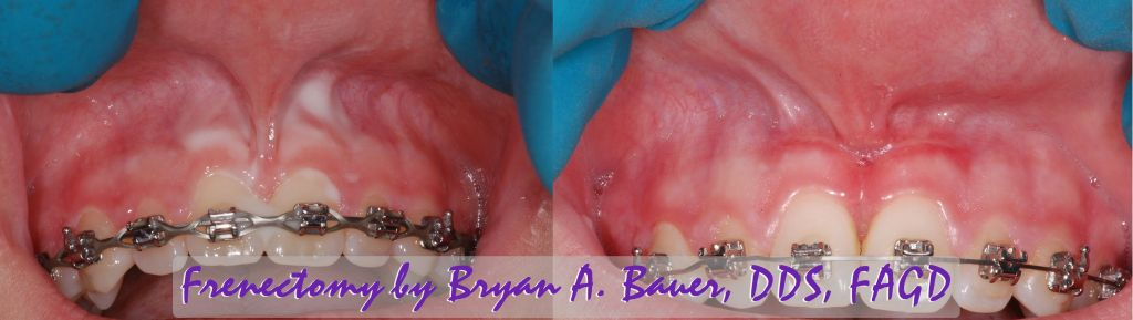 laser frenectomy before and after
