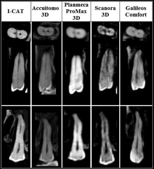 CBCT vertical root fracture