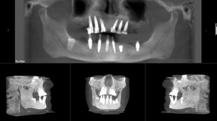 Sam's after 3D imaging showing all 12 dental implants