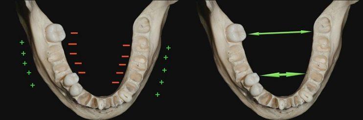 Image on bone growth mandible