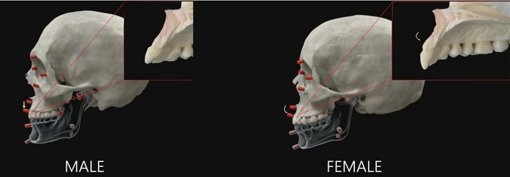 Image bone growth maxilla