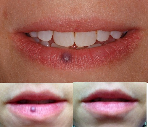 venous lake lower lip before and after