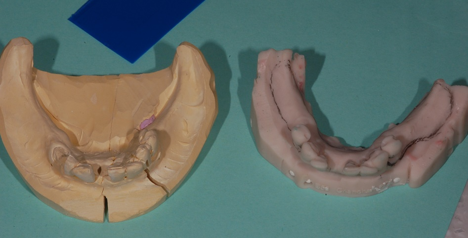 Digital denture model compared to a traditional model