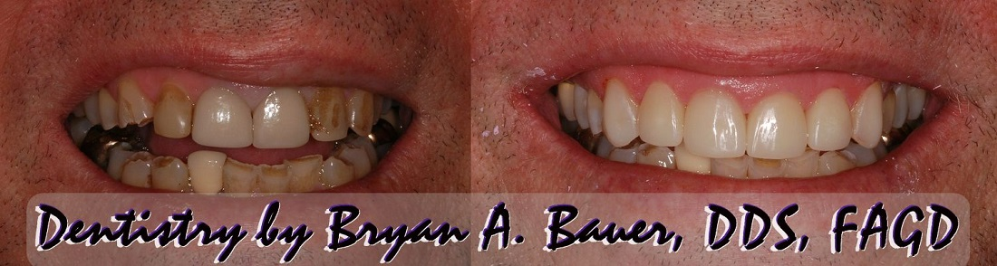 Composite veneers and porcelain veneers