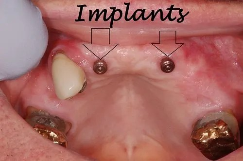 Image of an implant assisted partial denture