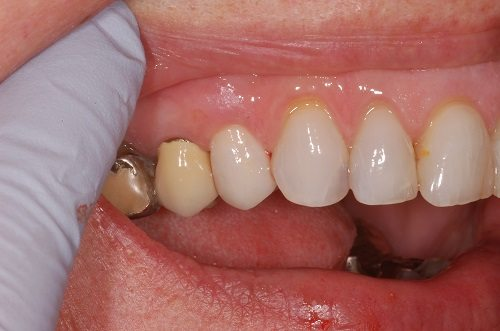 reduction coping dental crown