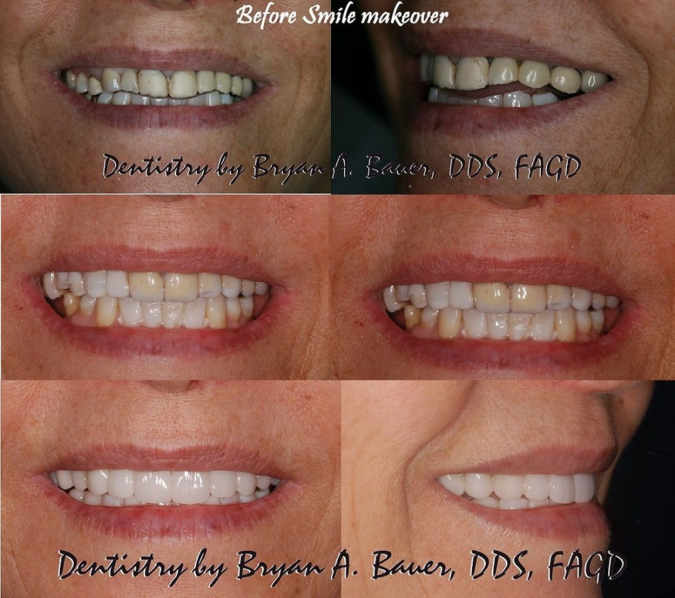 dental veneers temporary trial smile