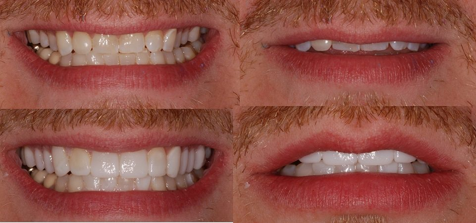 Image of dental veneers trial smile