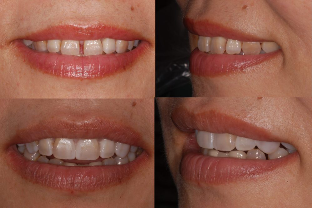 trial smile close spaces veneers