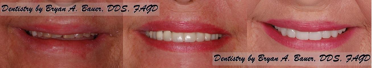 Trial smile of worn down teeth