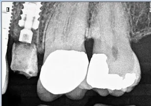 Xray of Biohorizons PEEK abutment seated