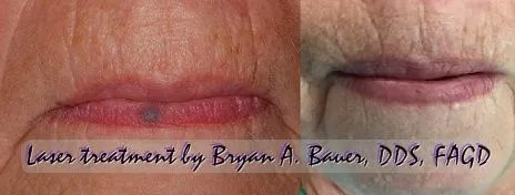 Blood blister on lip that won't go away? - Treatment here Bauer Smiles