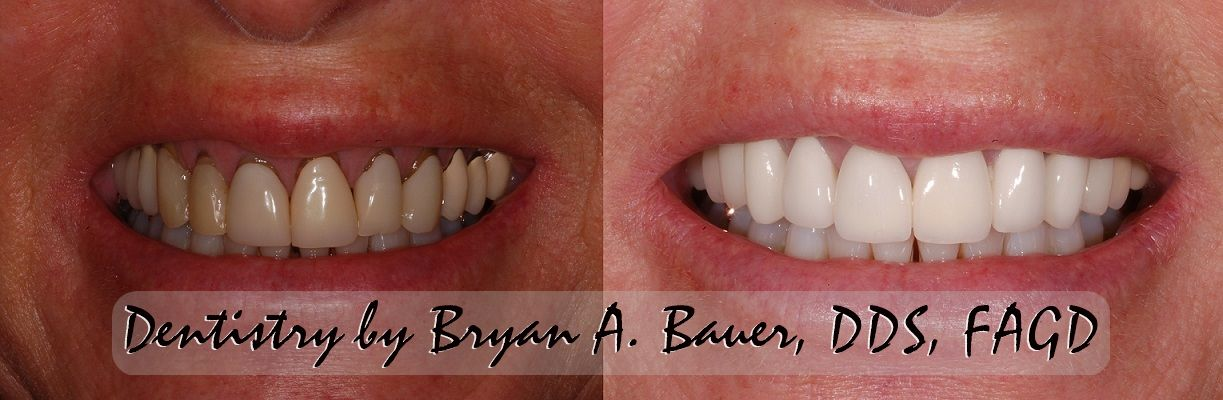 Replacement of old dental veneers with gum recession.