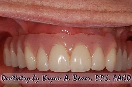 Image of teeth material options acrylic teeth