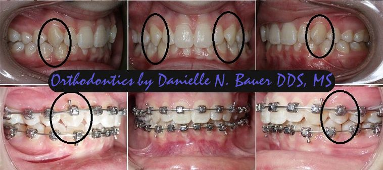Enameloplasty code and enameloplasty cost - Bauer Smiles