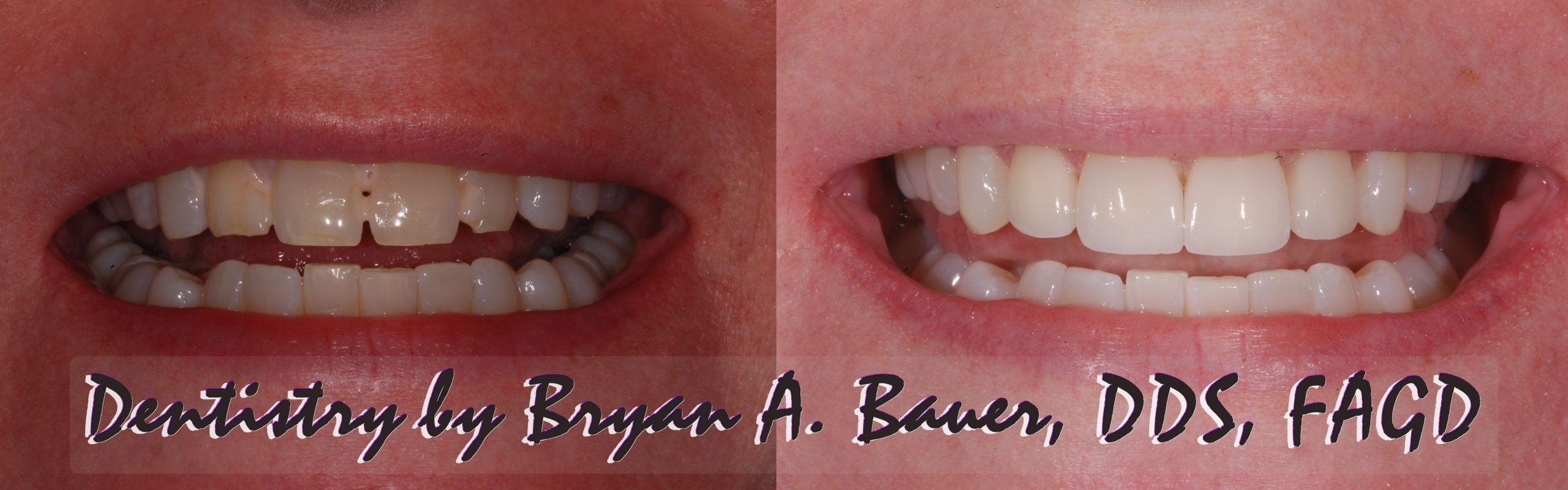 Before and after of 4 dental veneers and some bonding.