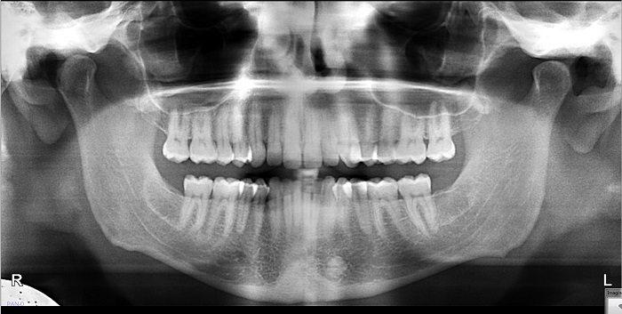 Image of idopathic osteosclerosis
