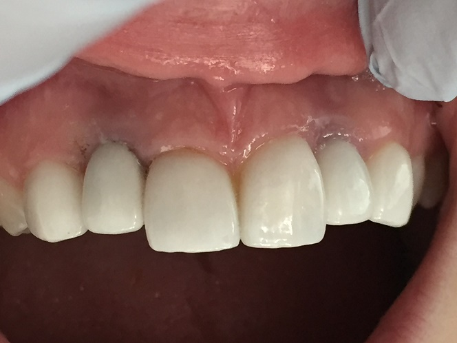 Too young for dental implants