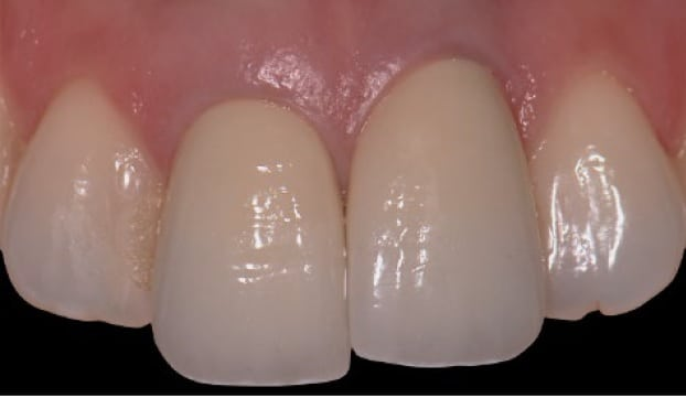 Image of dental implant that is now too short