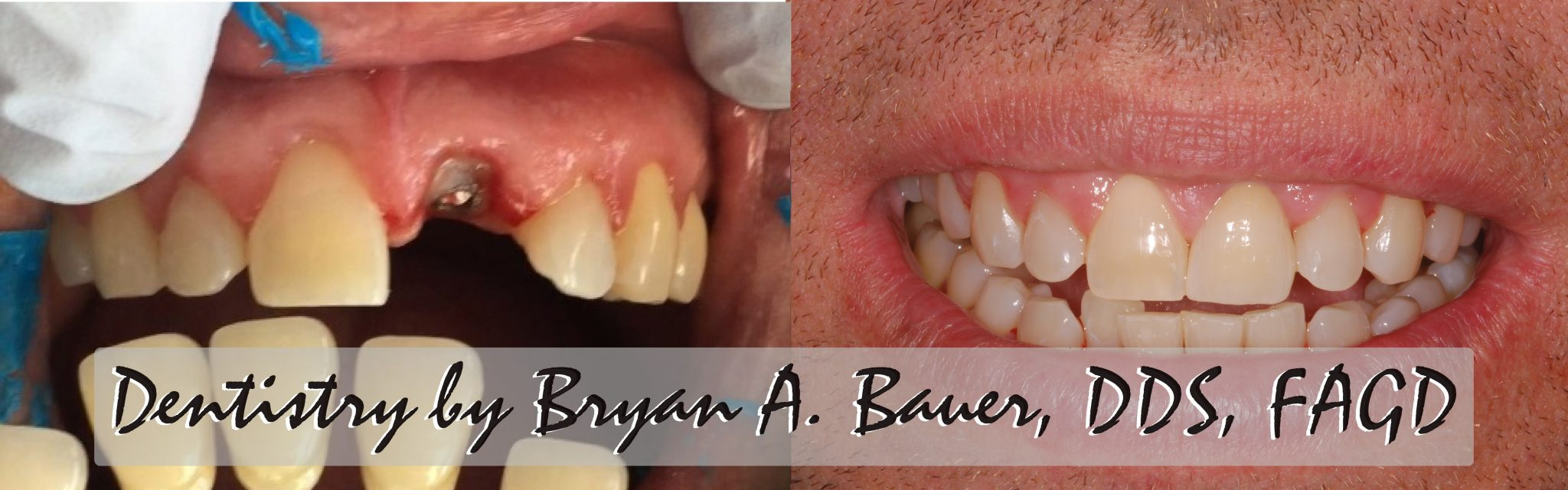 Single dental implant crown
