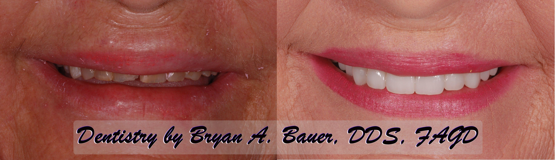 Upper teeth worn down and dental veneers placed.
