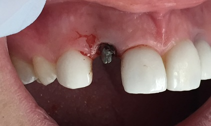 Terrible stock abutment