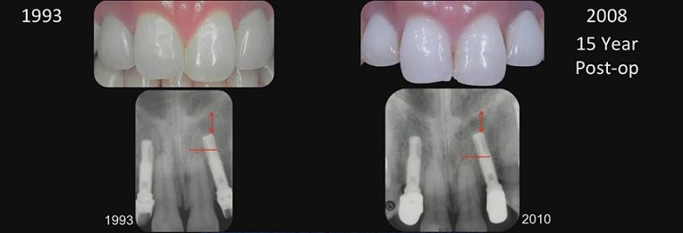 What is too young for dental implants?