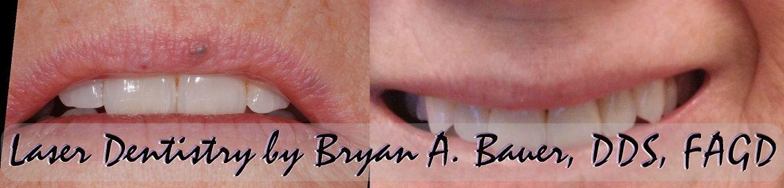Image of little blue bump on lip treatment.