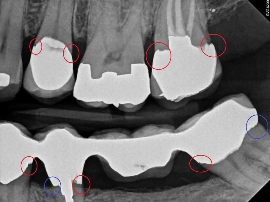 Dental tourism risks for dental crowns