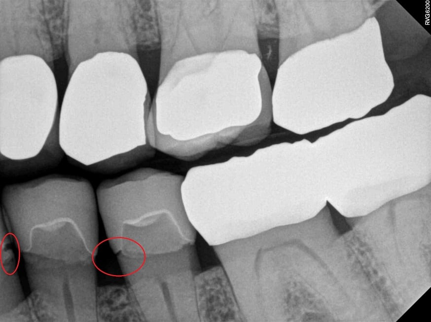 Dental tourism risks for dental crowns with open margins