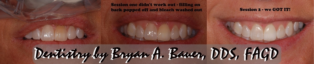 2 steps used to whiten this brown front tooth via internal bleaching.