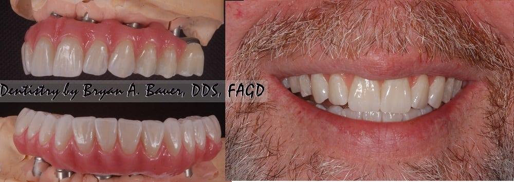 All on 6 zirconia teeth in full smile