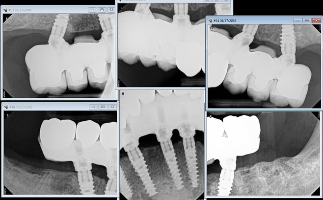 X-ray of all on 6 with zirconia teeth
