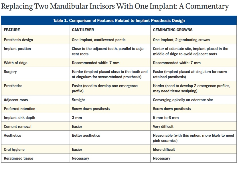Table of single implant for two teeth