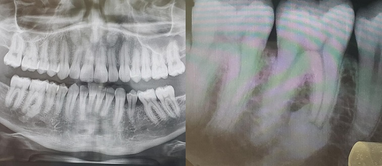 Idiopathic osteosclerosis can cause root resorption.