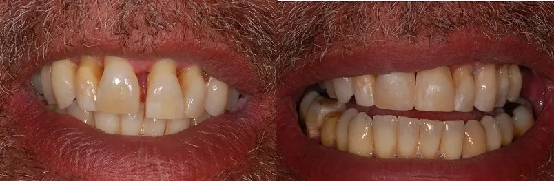Closing a front tooth gap with composite fillings.