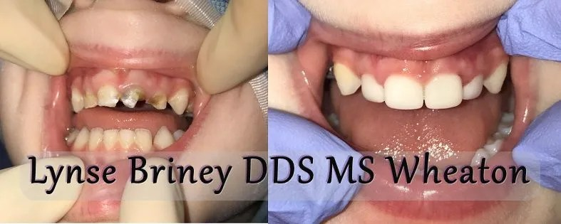 Before and after of front four baby teeth with white crowns.