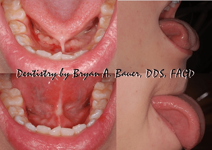 Posterior tongue tie surgery before and after results