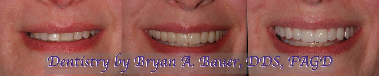 All on 6 for patient on her upper jaw.