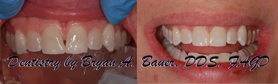 Closing a black triangle with Bioclear.