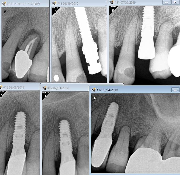X-rays from a retrograde peri-implantitis case study.