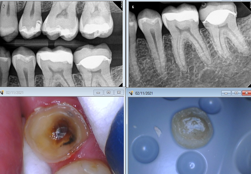 Bad cerec endocrown that also has a terrible marginal fit.