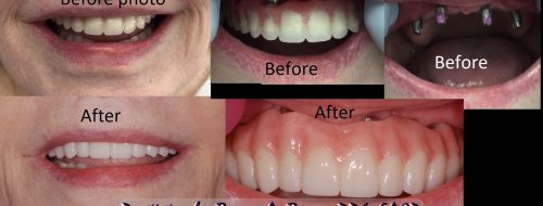 conus removable overdenture changed to fixed dental implant prosthesis