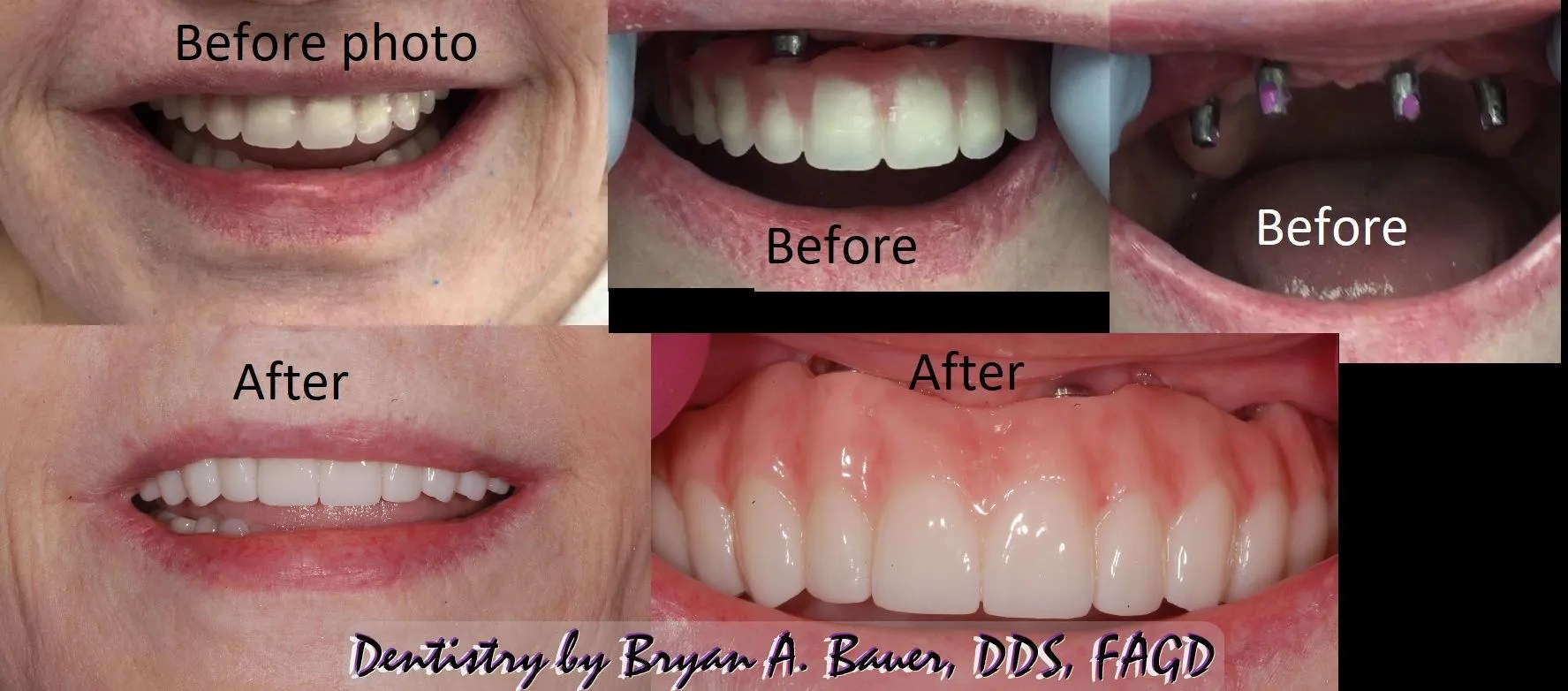 Conus removable overdenture before and after photo of final fixed dental implant all on 4.