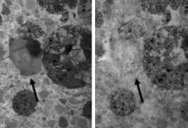 Beseitigung von Rissen in Beton mit Bakterien