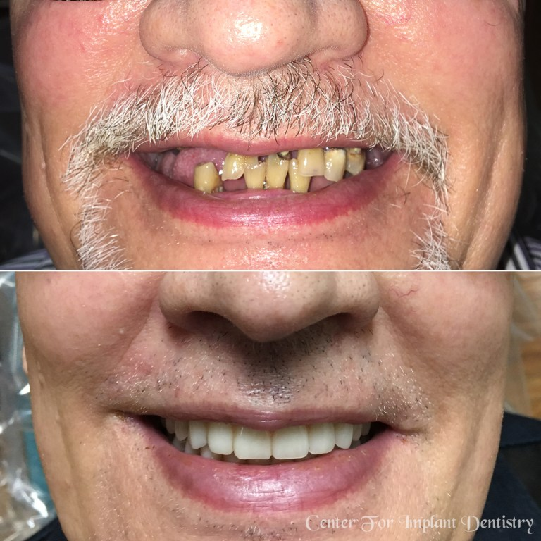 full-face-before-and-after40