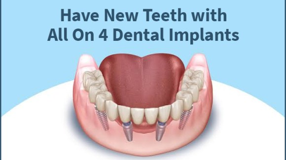 New Teeth With All on 4 Dental Implants