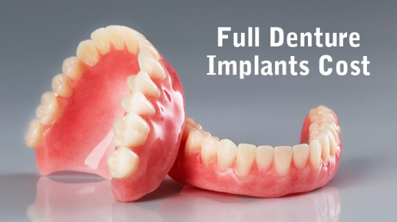 Full Denture Implants Cost - CID