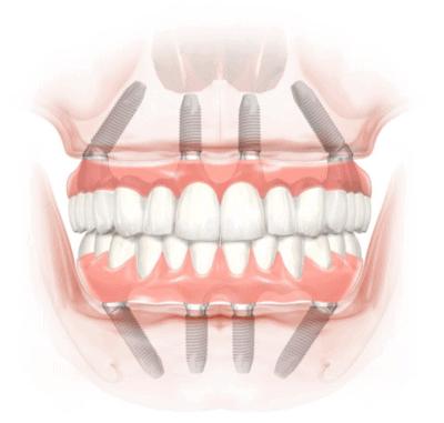 all-on-4-implants-houston-4